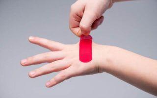 9 способов удалить клей от лейкопластыря с кожи