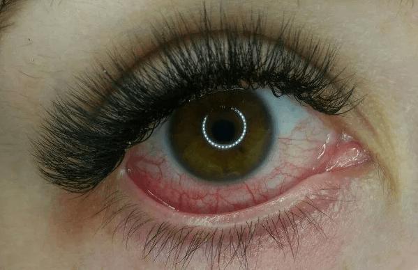 Ожог после наращивания ресниц и другие случаи ожога глаз